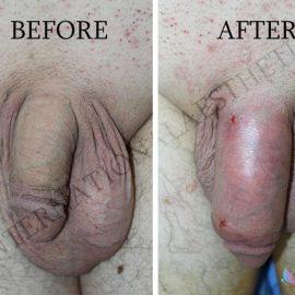 penile-girth-enhancement-Fat-transfer-to-penis